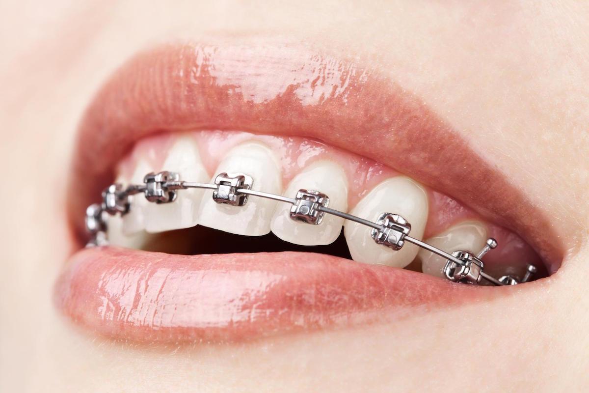 braces Norlane