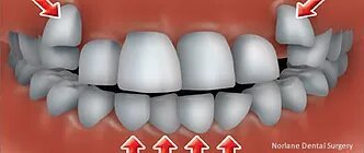 Orthodontics dentist norlane