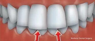 reliable orthodontic solutions in norlane