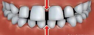 Orthodontics Dentist