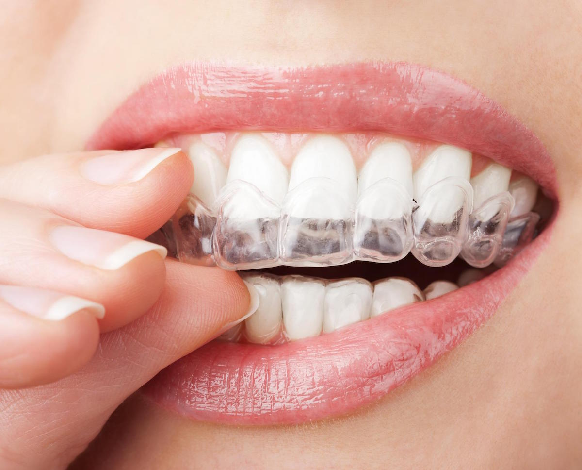 cheap orthodontics norlane