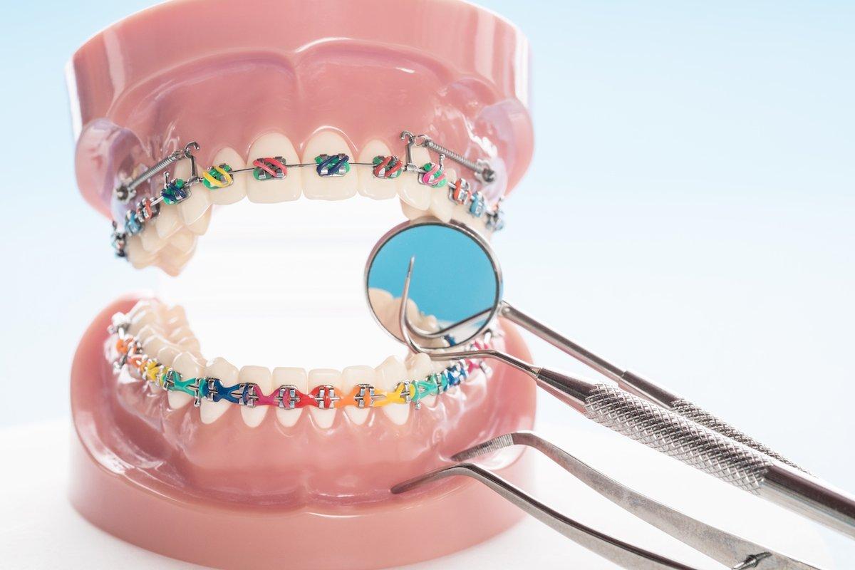 affordable orthodontics norlane