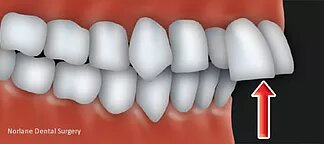 improves your smile and your health with orthodontic treatment