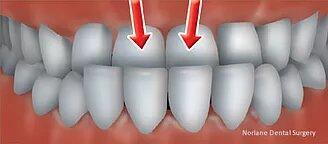 Orthodontics Consultation in norlane