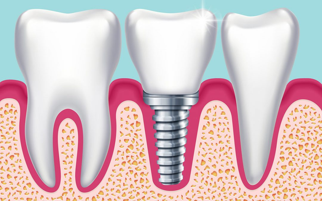 Dental Tips: What are the replacement options for missing teeth?