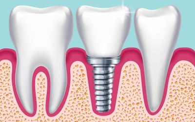 Norlane Dentist Tips: What are the replacement options for missing teeth?