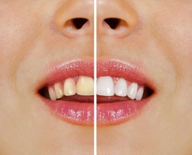 Norlane Dentist Tips Over-the-Counter Whitening vs Professional Teeth Whitening