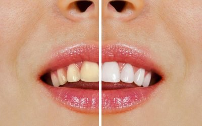 Norlane Dentist Tips: Over-the-Counter Whitening vs Professional Teeth Whitening