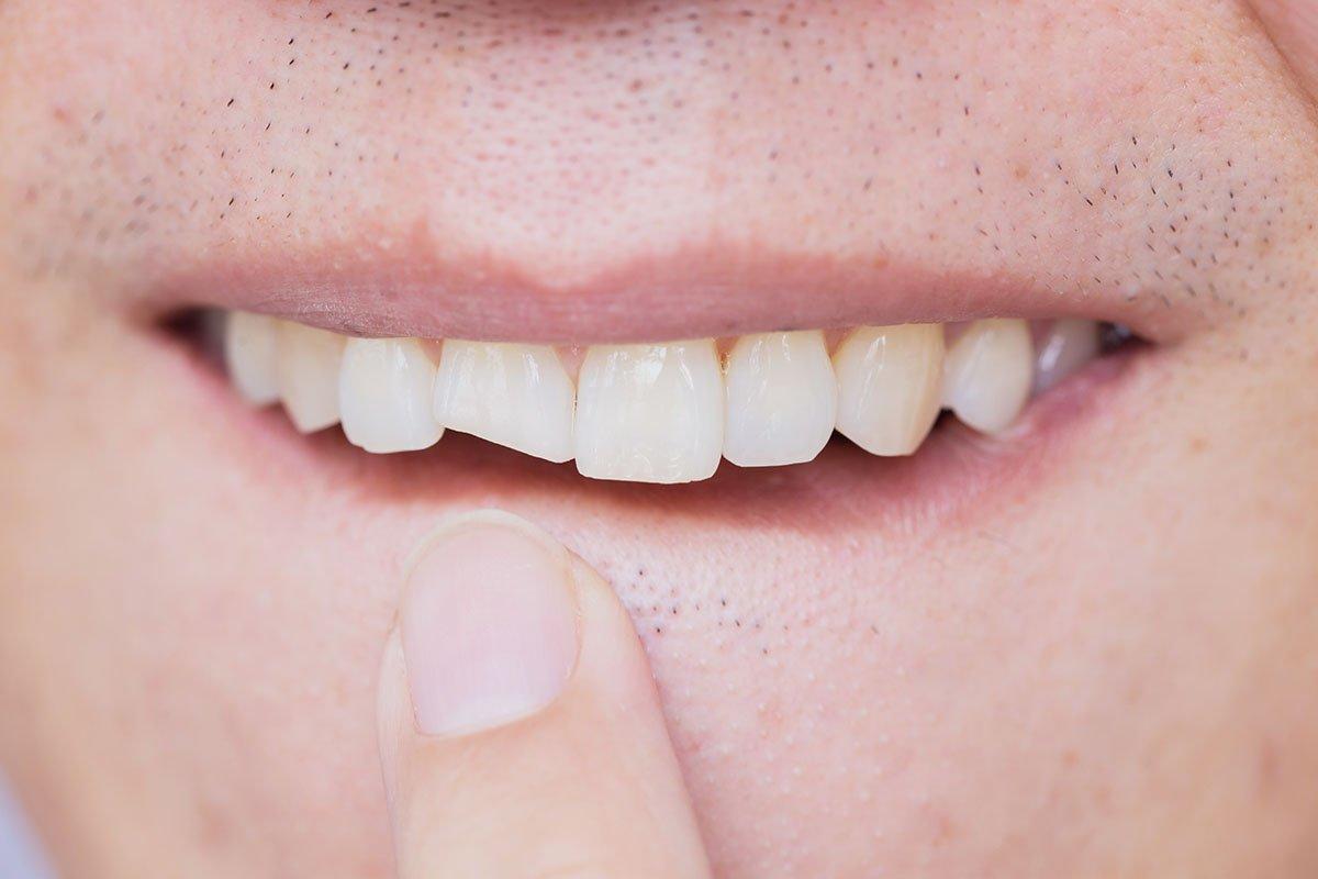 broken tooth - dental emergency