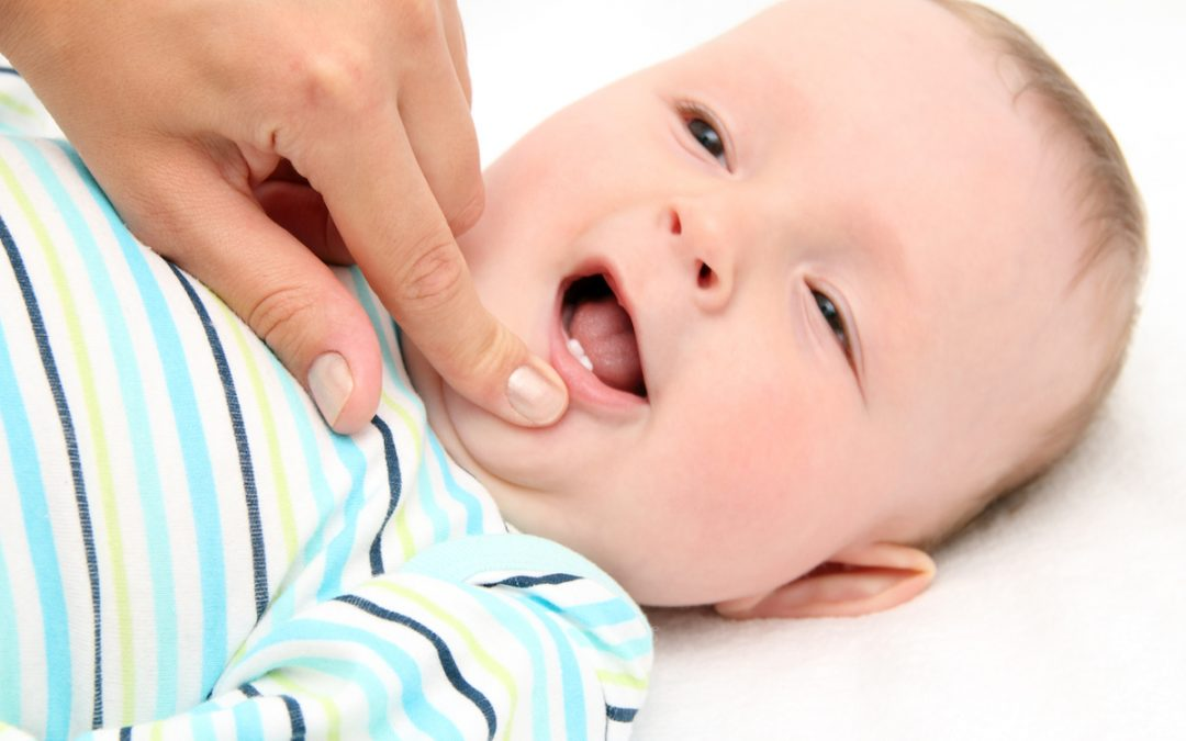 Preventing Cavities and Tooth Decay in Baby Teeth