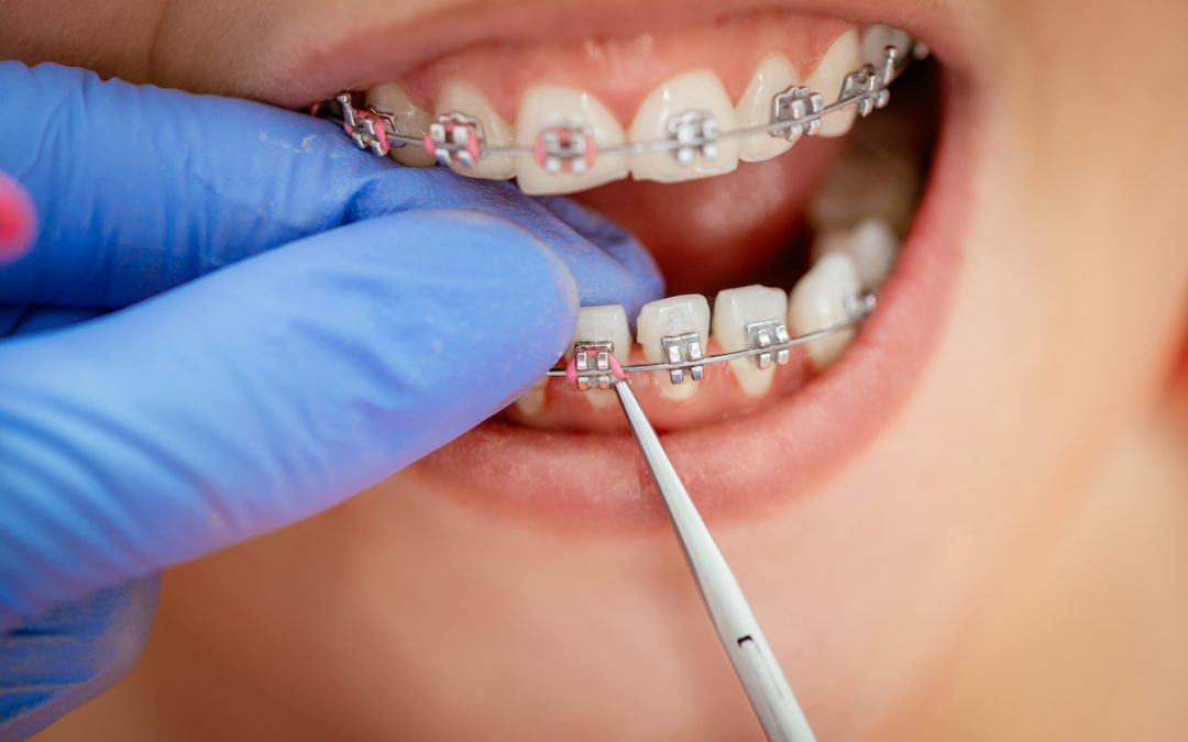 Can I Get Braces If I Have Missing Teeth?