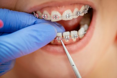 can i get braces if i have missing teeth norlane geelong