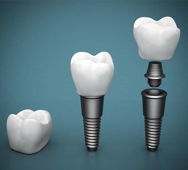 dental implants norlane
