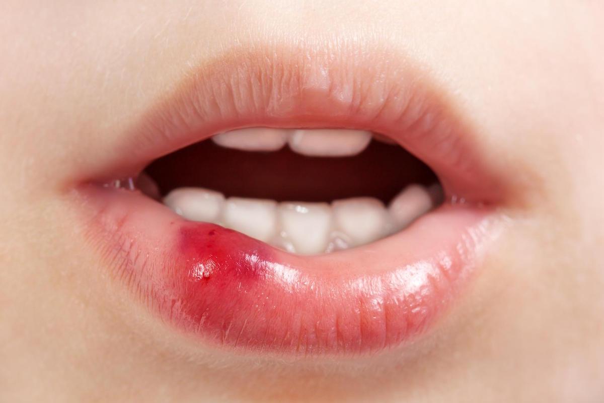 injured soft tissue - dental emergency