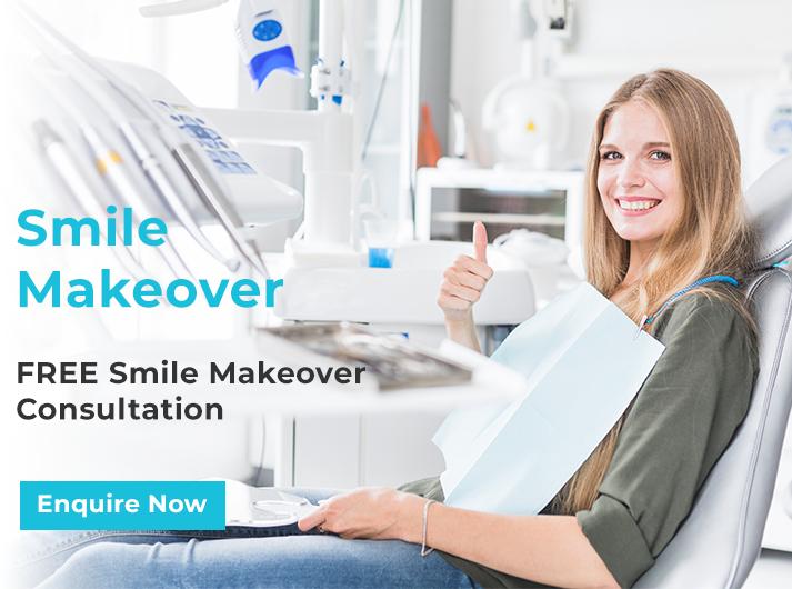 smile makeover free consultation banner