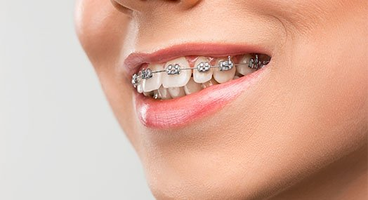 braces care norlane geelong