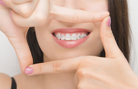 braces cleaning tips norlane geelong