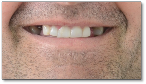 crown and implants case 1 image 1 dentist norlane geelong
