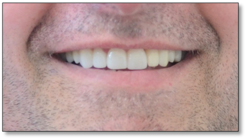 crown and implants case 1 image 2 dentist norlane geelong