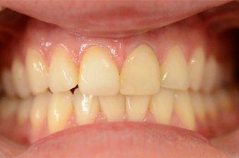 smile designing case 1 image 1 dentist norlane