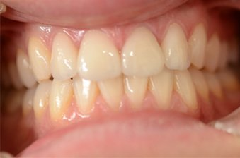 smile designing case 1 image 2 dentist norlane