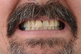 smile designing case 2 image 1 dentist norlane