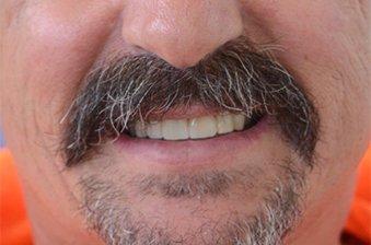 smile designing case 2 image 2 dentist norlane