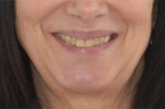 smile designing case 3 image 1 dentist norlane