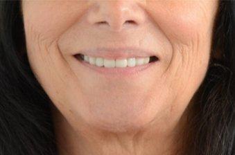 smile designing case 3 image 2 dentist norlane