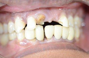 smile designing case 4 image 1 dentist norlane