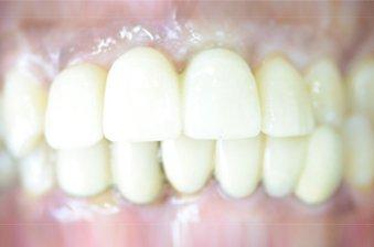 smile designing case 4 image 2 dentist norlane