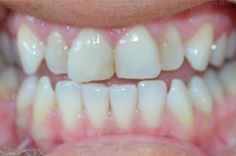 smile designing case 5 image 1 dentist norlane