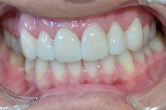 smile designing case 5 image 2 dentist norlane
