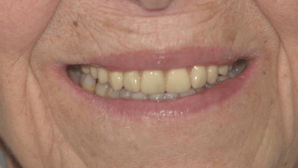 marie-all-on-4-ceramic-bridge-before-norlane-geelong