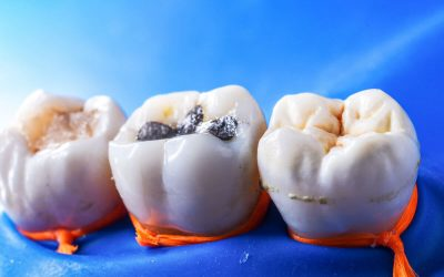 How to Choose the Best Dental Fillings in Norlane